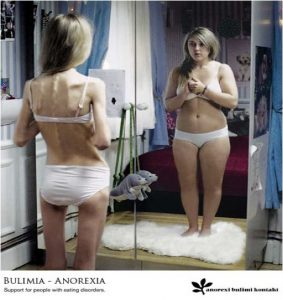bulimia_anorexia